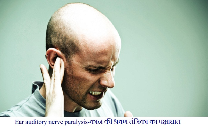 Ear auditory nerve paralysis