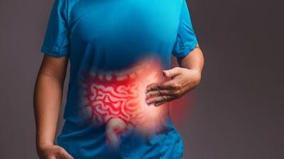 علامات وأعراض لمتلازمة القولون العصبي (IBS)