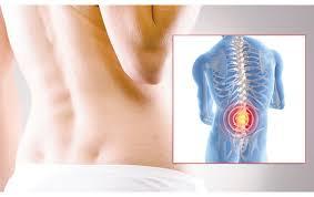 Obat Tulang Skoliosis Secara Herbal