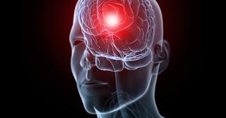 يعد الصداع النصفي ثالث أكثر الأمراض شيوعًا في العالم. إن فهم أنواع الصداع التي تسبب الألم على الجانب الأيسر , يفسر سبب الألم ويساعد الناس على الحصول على العلاج المناسب