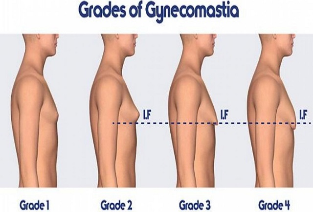 how to detect gynecomastia man boobs male breast tissue