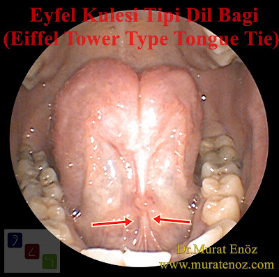 Eyfel Kulesi Tipi Dil Bağı - Eiffel Tower Type Tongue Tie - Eiffel Tower Type Anterior Tongue Tie - Eyfel Kulesi Tipi Ön Dil Bağı - Eyfel Kulesi Tipi Lingual Frenulum - Eiffel Tower Type Lingual Frenulum - Dil Bağı - Piston Tipi Dil Bağı - Piston Type Tongue Tie