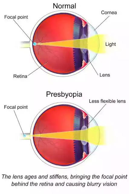 Presbyopia Vs Normal Eye