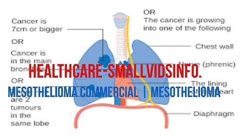 mesothelioma commercial actor
