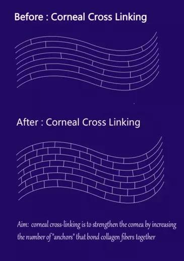 Keratoconus, Corneal Cross Linking , keratoconus c3r treatment cost