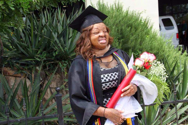 Image result for One of the two survivors of 2005 Sosoliso plane crash, Kechi Okwuchi