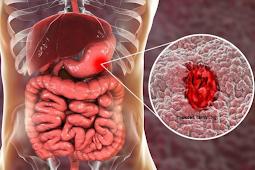 Apakah Tukak Lambung (Peptic Ulcer) Dapat Diobati Sendiri? | Apotek F21