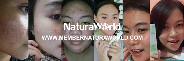 Testimoni Natura Beauty Spray Balita hingga Dewasa