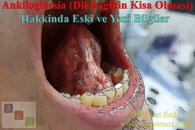 Ankiloglossia nedir? - Ankiloglossi - Kısa dil bağı - Dil bağı kısalığı - Dil altı bağı belirtileri - Dil bağı tedavisi - Dil bağı operasyonu - Lingual frenulektomi - Ankiloglossi belirtileri - Dil bağı konuşmaya engel midir? - Dil bağına bağlı fonkiyonsel etkiler - Tongue tie - Tongue tie treatment in İstanbul, Turkey - Ankyloglossia