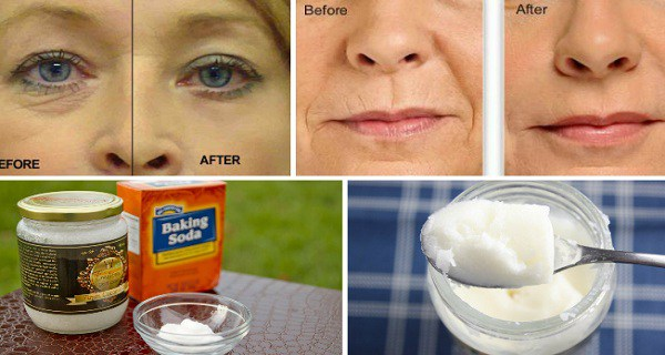 Say Goodbye To Wrinkles And Facelifts With This Homemade Lotion