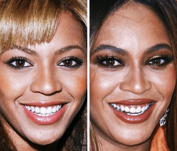 Beyoncé - 21 Yaş ve 37 Yaş