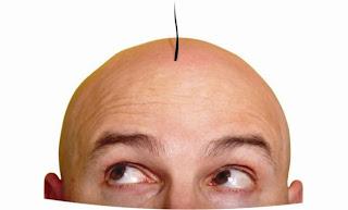 Υπάρχει θεραπεία για τη φαλάκρα; Κι όμως ναι...