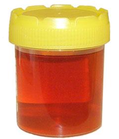 Darah dalam urin