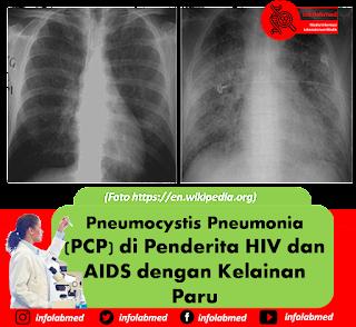 Pneumocystis Pneumonia (PCP) di Penderita HIV dan AIDS dengan Kelainan Paru
