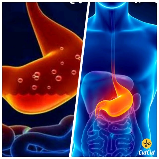 Do you also have stomach problems? Is your stomach upset? Easy treatment