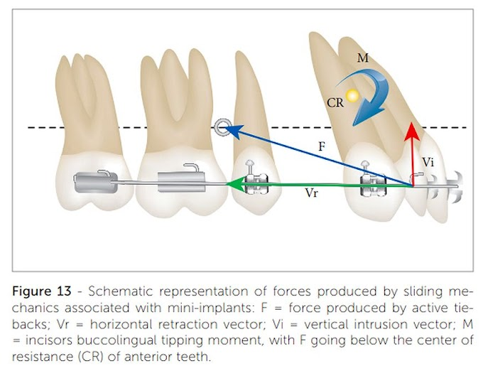 PDF: CLASS I MALOCCLUSION with severe double rotrusion treated with first premolars extraction