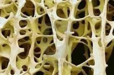 عالج هشاشة العظام بطريقة طبيعية