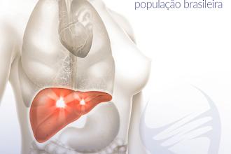 Sobre Câncer de Fígado e Carcinoma de Esôfago