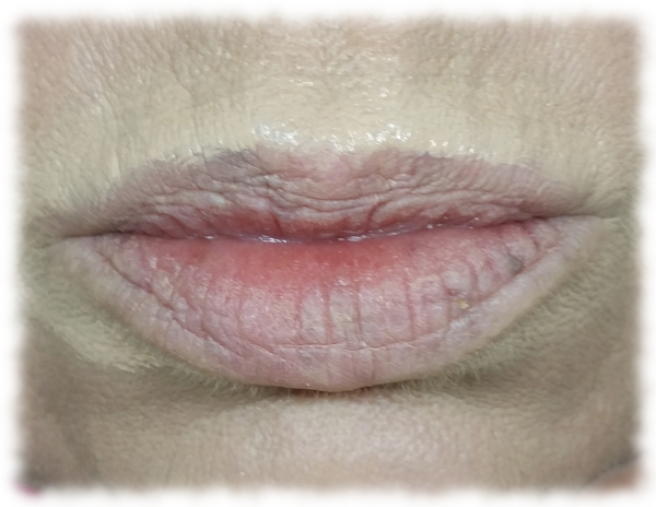 Lips with concealer smeared on