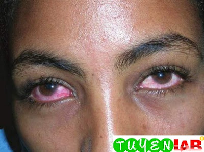 Viral conjunctivitis demonstrating bilateral conjunctival injection with little discharge