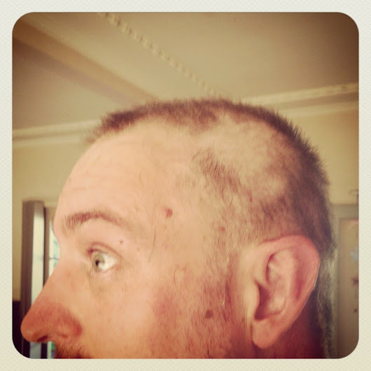 Cycle one down and hair loss