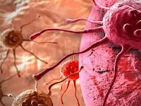 Obat Herbal Kanker Stadium 1