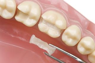 Lưu ý sau khi trám răng cần thực hiện ngay