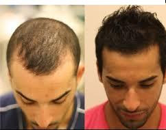 Tackling Hair Loss . it is Possible ? yes.