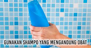 Gunakan shampo yang mengandung obat untuk ketombe yang sulit sembuh