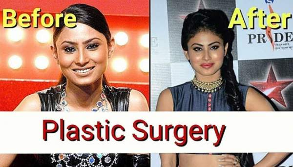 मौनी रॉय plastic surgery now and then
