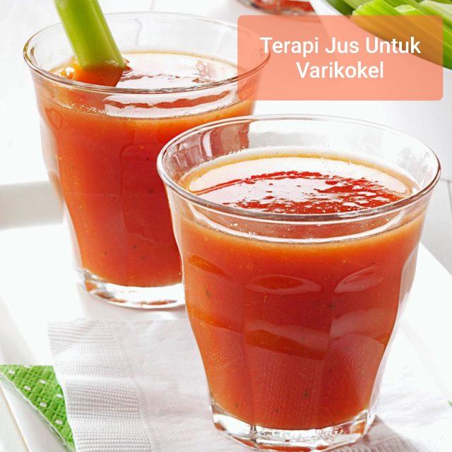 Terapi jus untuk varikokel