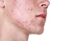 Tips menyembuhkan wajah berjerawat