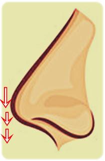 Burun estetiği sonrasında burun ucunda düşme - Burun ameliyatı sonrası burun ucunda düşme - Estetik burun ameliyatı sonrası burun düşmesi