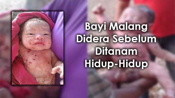 Bayi Malang Didera Sebelum Ditanam Hidup-Hidup
