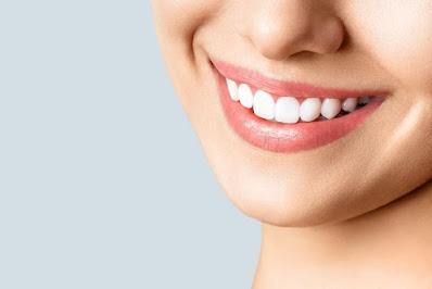 تبييض الأسنان: هل هو خطير
