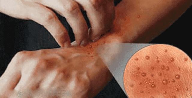 كيفية علاج الاكزيما والوقايه منها