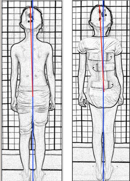 脊椎側彎背架, 脊椎度數, 脊椎側彎矯正, 脊椎側彎治療