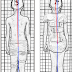 不穿脊椎側彎背架的10個理由