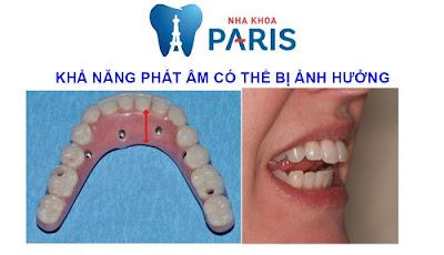 [Image: kha-nang-phat-am.jpg]