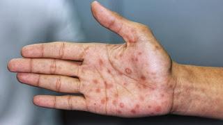 Mano infectada de sífilis