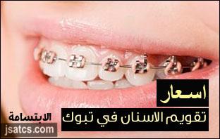 اسعار تقويم الاسنان في تبوك