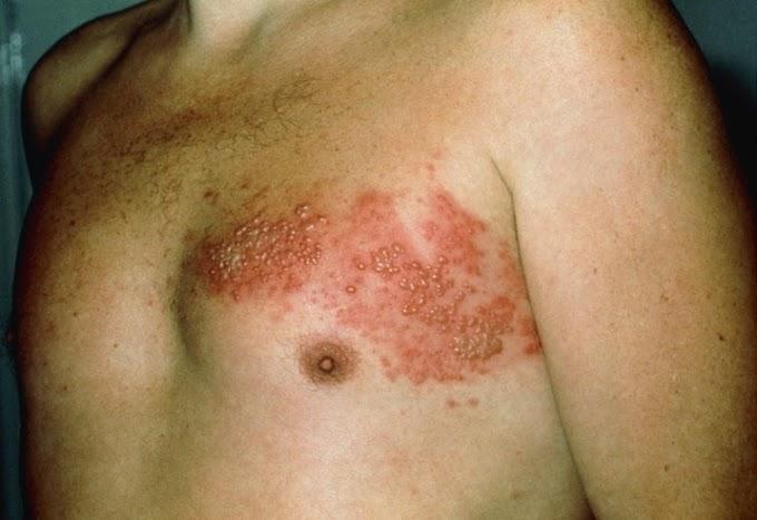 Cara Menyembuhkan Herpes yang Mengganggu