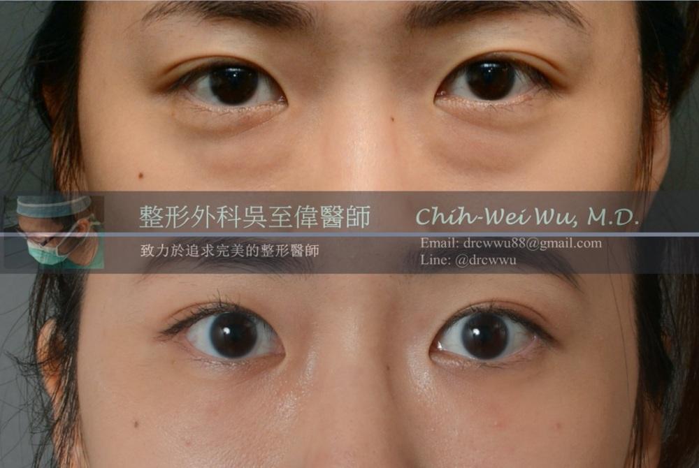 2021年三月最新眼袋手術案例
