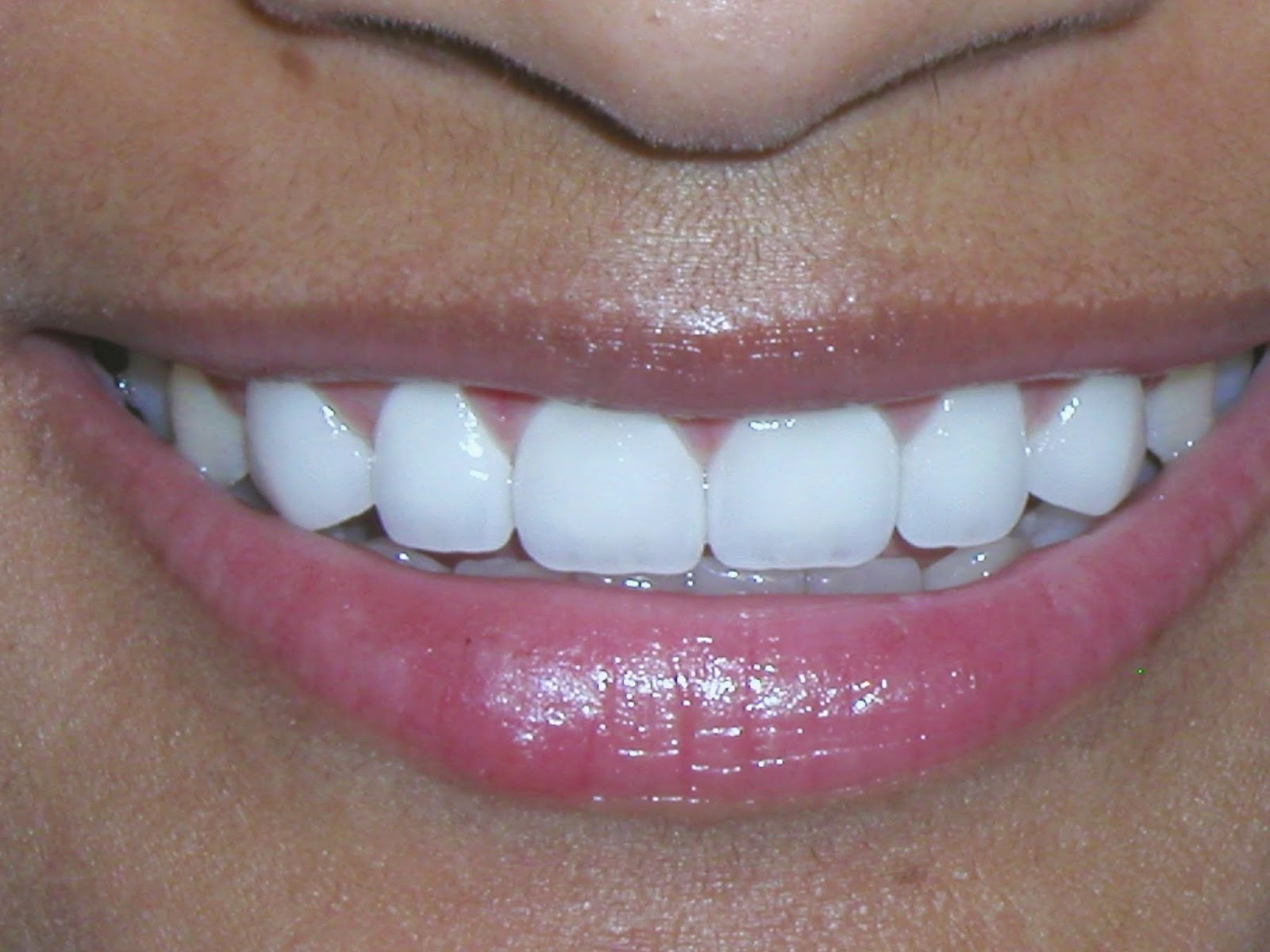 Will porcelain veneers solve your aesthetic concerns?