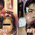 Isang Ina, Nananawagan ng Tulong Para sa Kanyang Anak na May Malubhang Karamdaman!