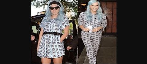 Cantante Kesha Vestido Cat Print