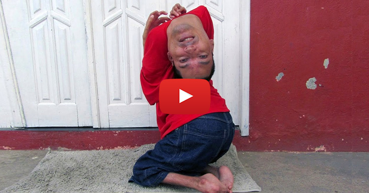 Man born with an upside down head is now a successful public speaker