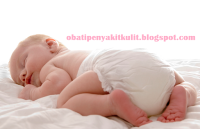 http://obatipenyakitkulit.blogspot.com/2015/06/obat-ruam-kulit-pada-bayi.html