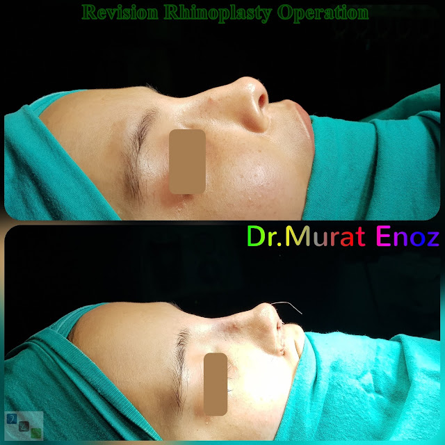 Revision Rhinoplasty Operation in Istanbul, Ethnic Revision Nose Job Turkey