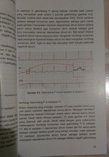 Elektrokardiografi Ilustratif Edisi 2